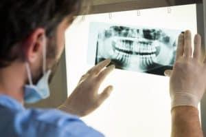 male dentist examining x-ray