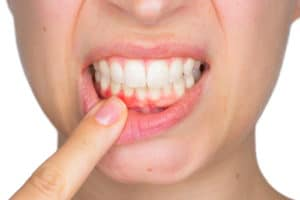 woman pointing at receding gums